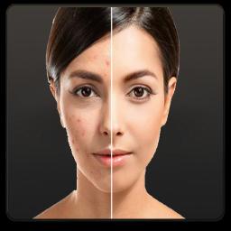 راهنما درمان لک و جوش صورت