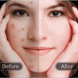 درمان جوش صورت ، از بین بردن جای جوش صورت