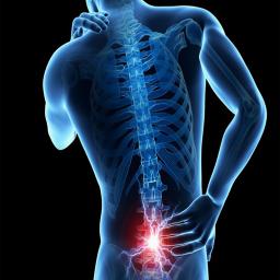 درمان دیسک کمر و گردن در خانه