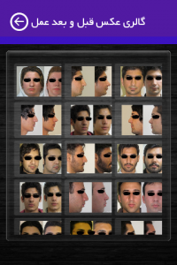 اسکرین شات برنامه جراحی زیبایی صورت و بینی - دکتر علی سرابی 6